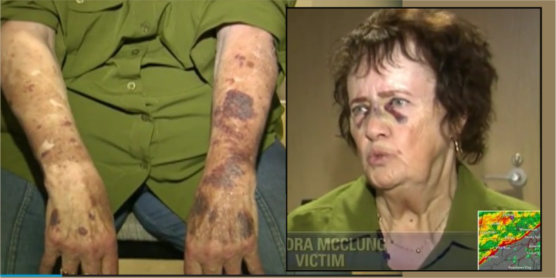 Elderly disabled woman pummeled in racially motivated attack in Atlanta
