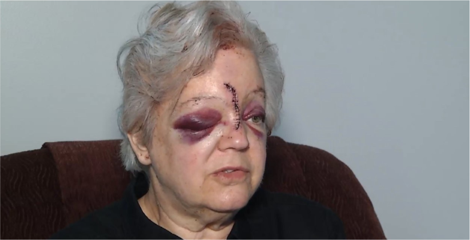 Elderly woman beaten with a hammer in Kansas City